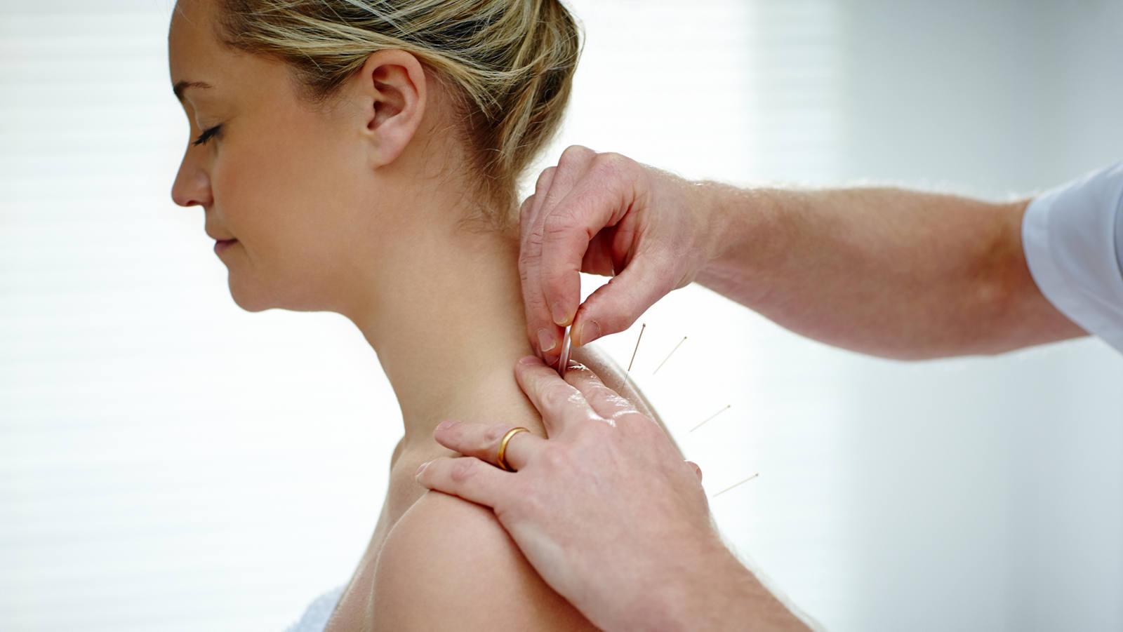 Dry Needling gegen Muskelverhärtungen