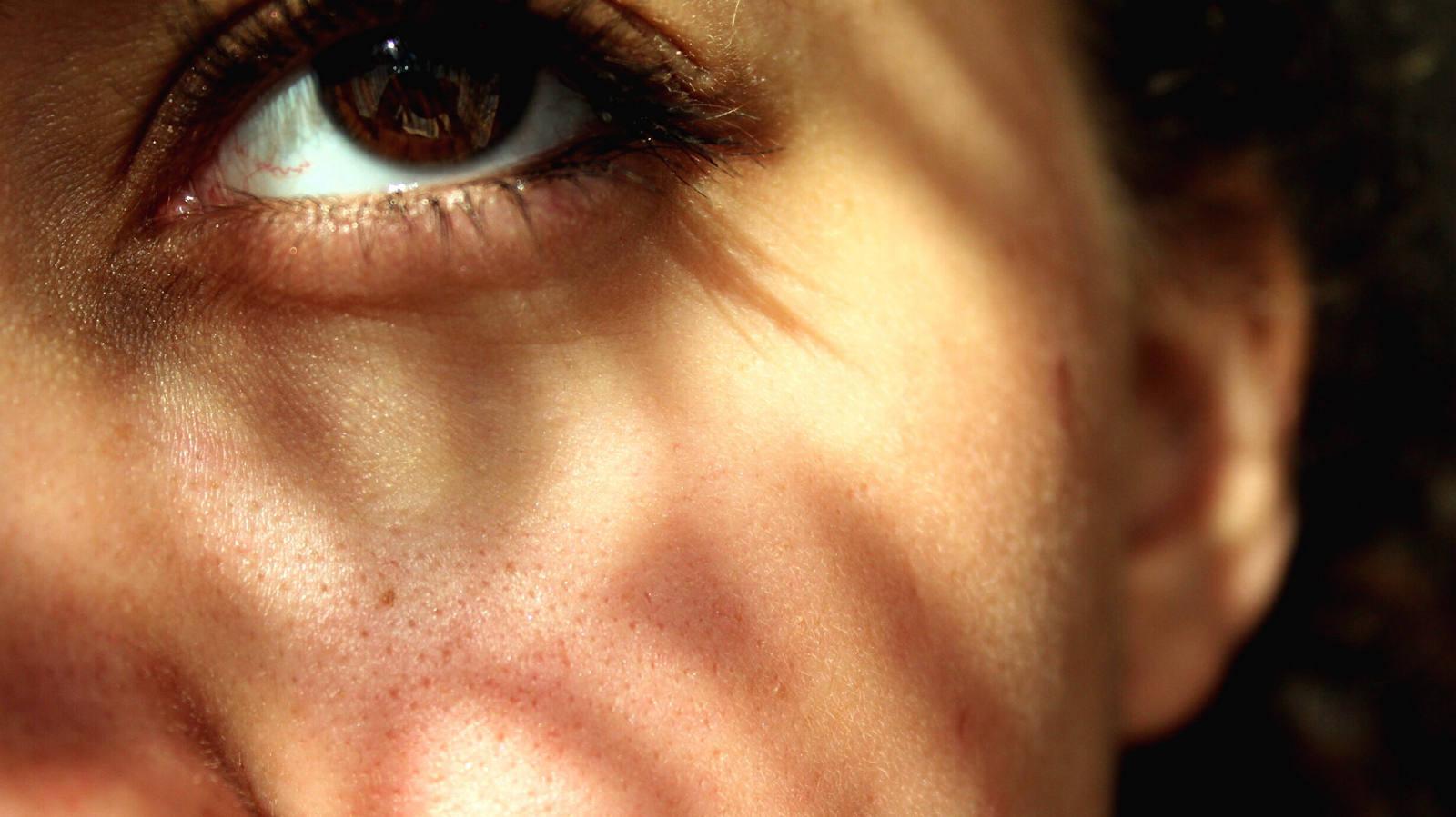 Sonnenallergie: wenn es brennt auf der Haut